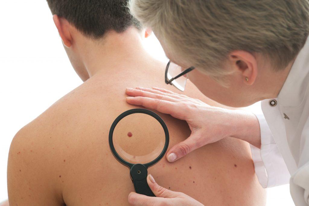 کراتوز سبورئیک چگونه تشخیص داده می شود؟